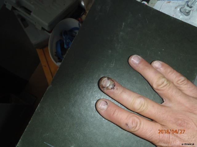 20180427 finger